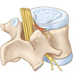 SCIATICA-FROM-HERNIATED-DISC