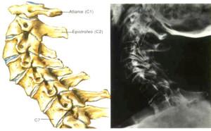 spondiloartrosi1
